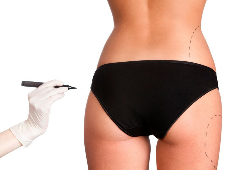 Liposuction Turkey | Affordable Liposuction in Istanbul | MCAN Health