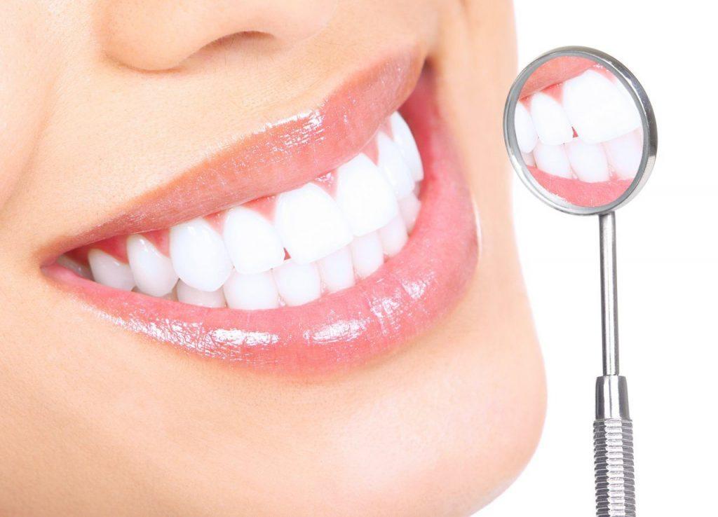 Zahnkronen in der Türkei   MCAN Health