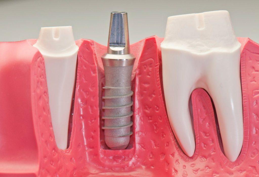 Dental Implants (Tooth Implant) Turkey | MCAN Health