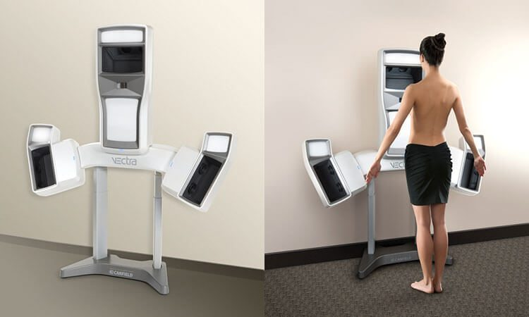 vectra 3d aesthetic simulation | MCAN Health