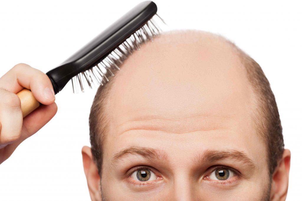 PRP Treatment for Hair Loss in Istanbul   MCAN Health