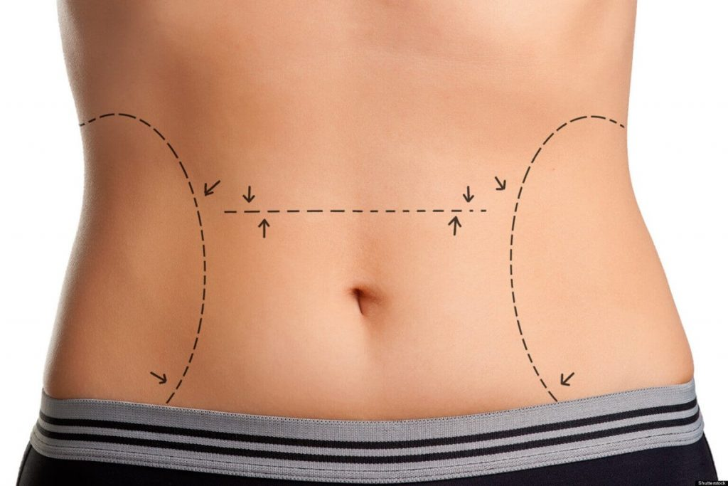 Tummy Tuck Turkey   Affordable Abdominoplasty in Istanbul   MCAN Health