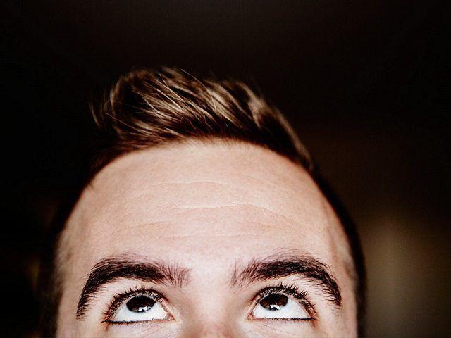 Hair Transplant Hairline | MCAN Health Blog