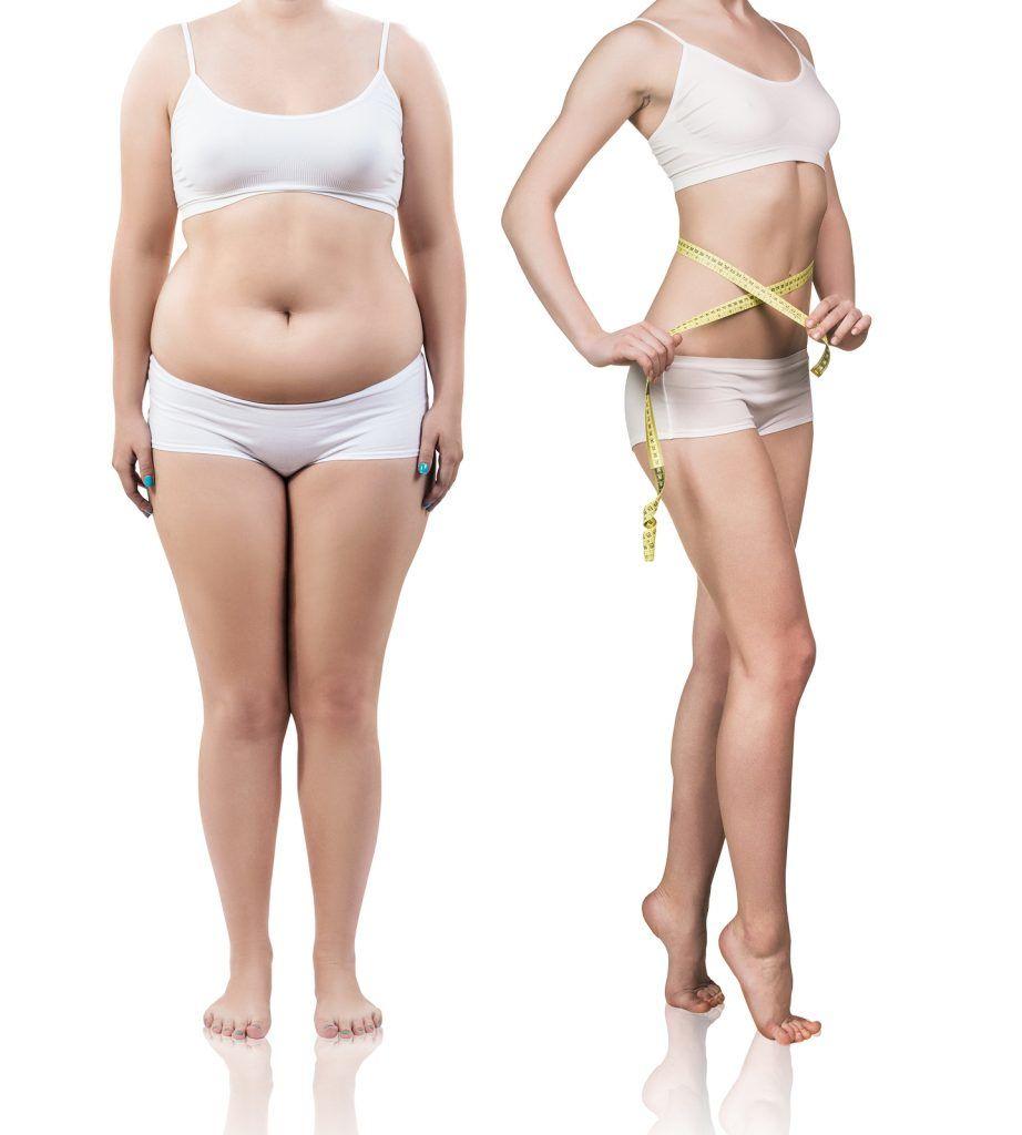 Mega Liposuction in Turkey | MCAN Health