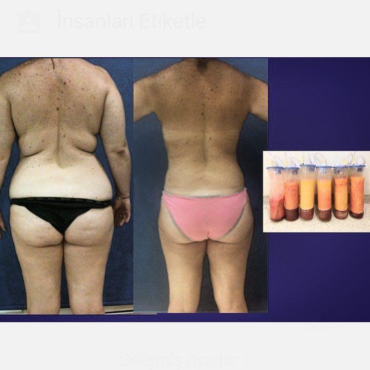 Mega Liposuction Turkey | MCAN Health Before-After