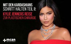 Mit den Kardashians Schritt halten Teil II: Kylie Jenners Reise zur plastischen Chirurgie